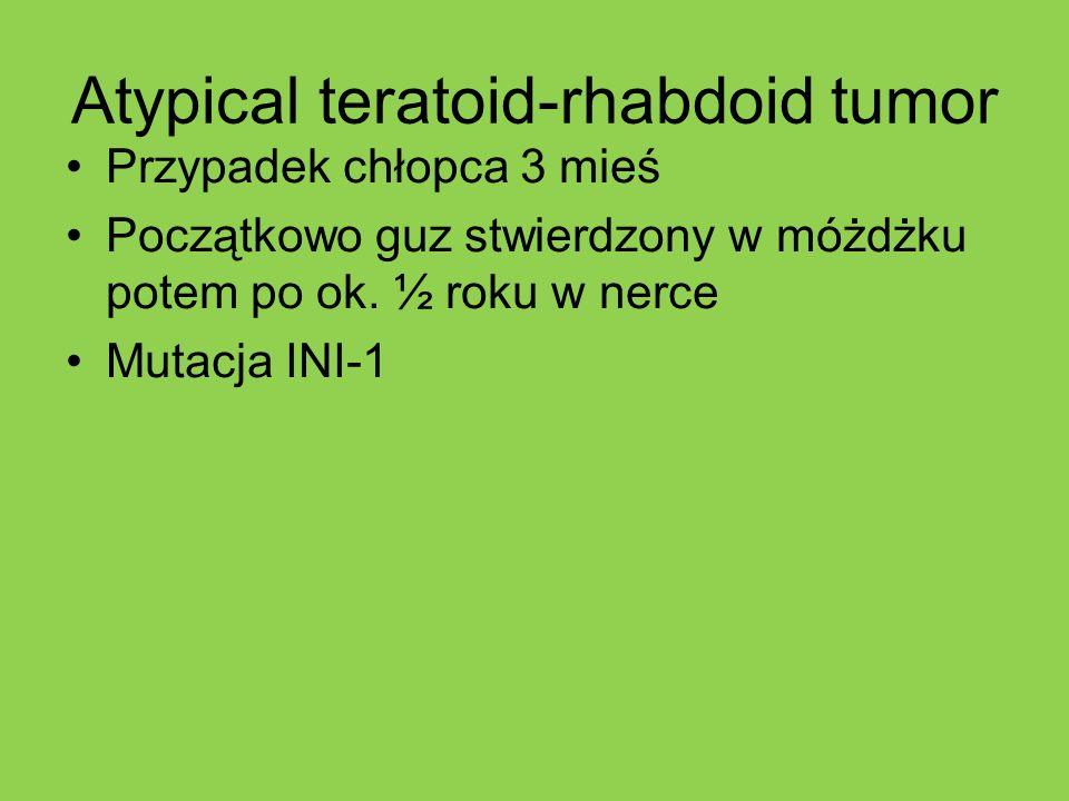 Atypical teratoid-rhabdoid tumor