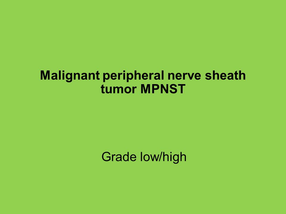 Malignant peripheral nerve sheath tumor MPNST
