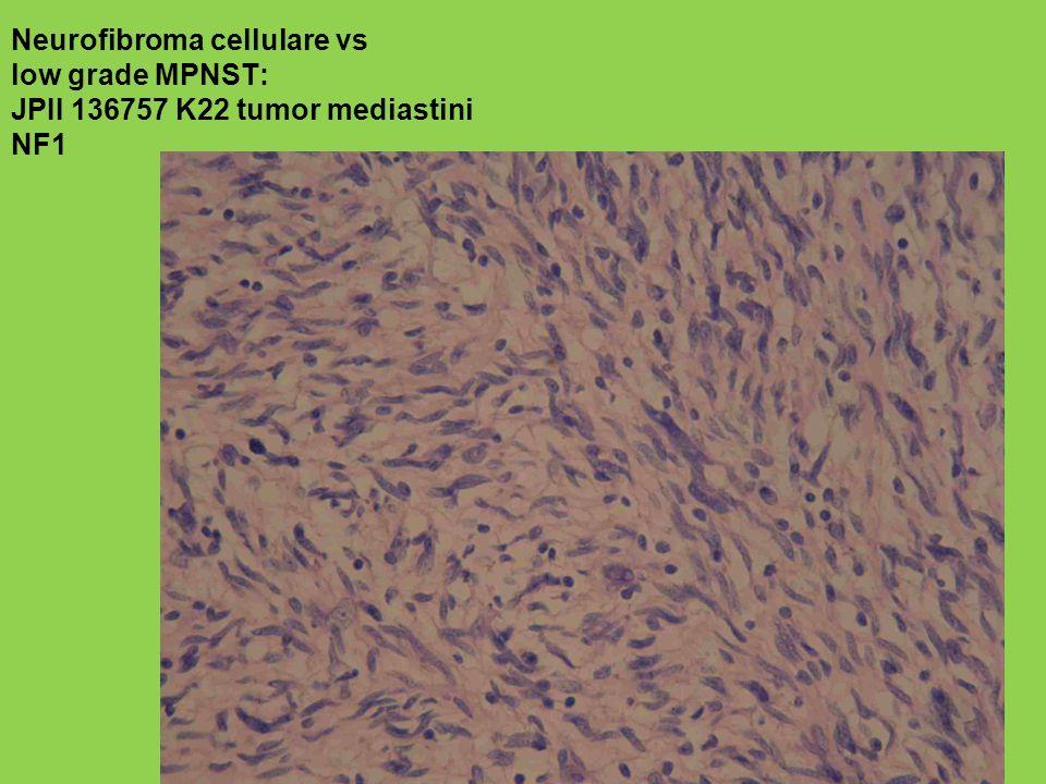 Neurofibroma cellulare vs low grade MPNST: JPII 136757 K22 tumor mediastini NF1