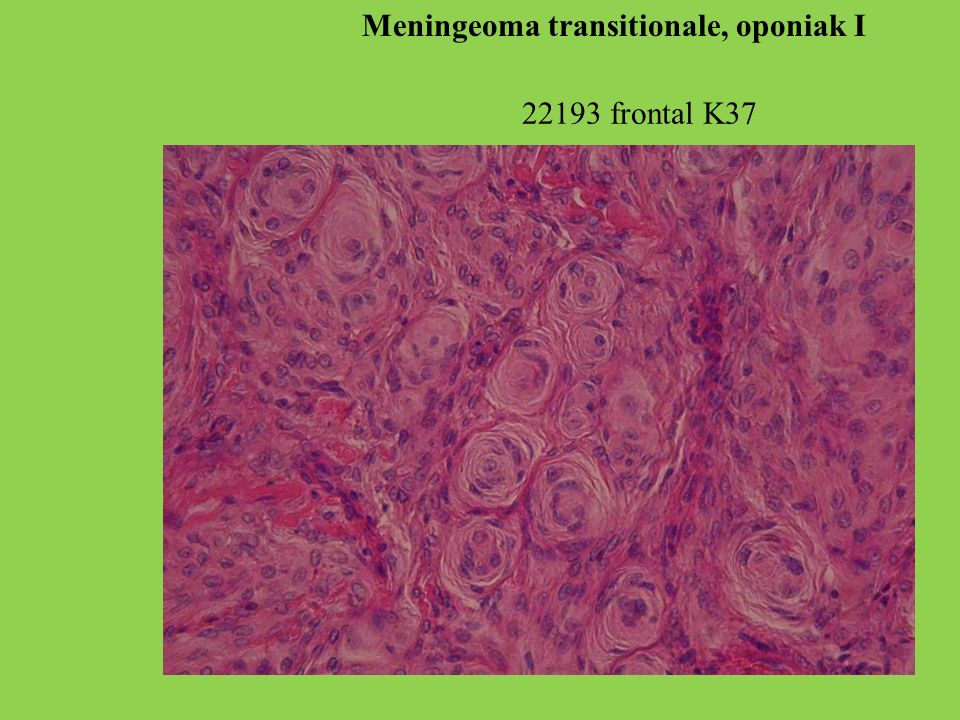 Meningeoma transitionale, oponiak I