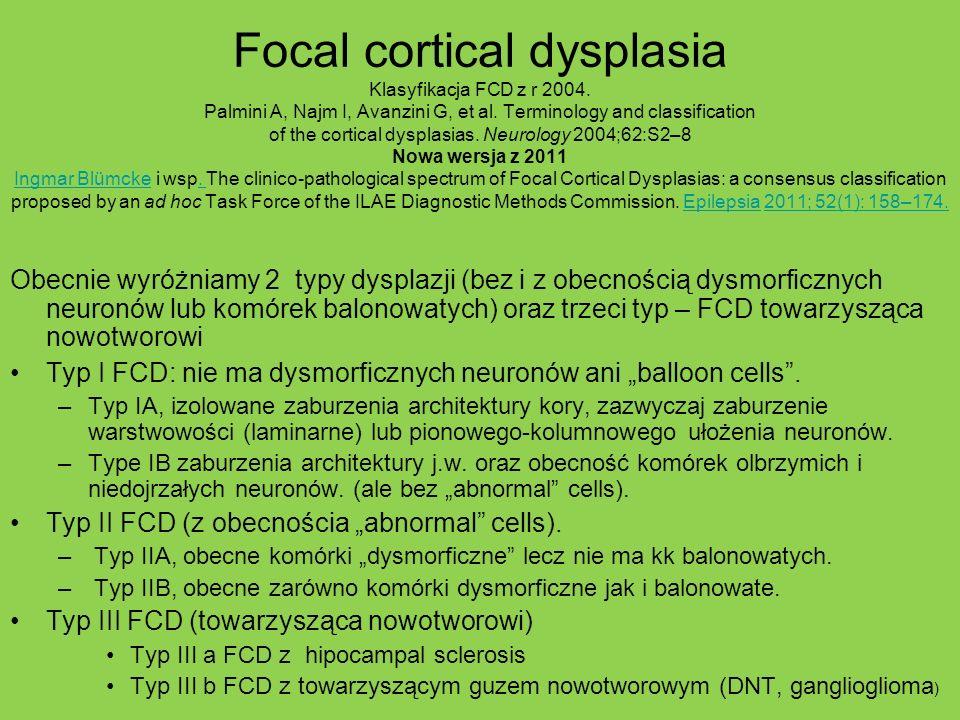 Focal cortical dysplasia Klasyfikacja FCD z r 2004