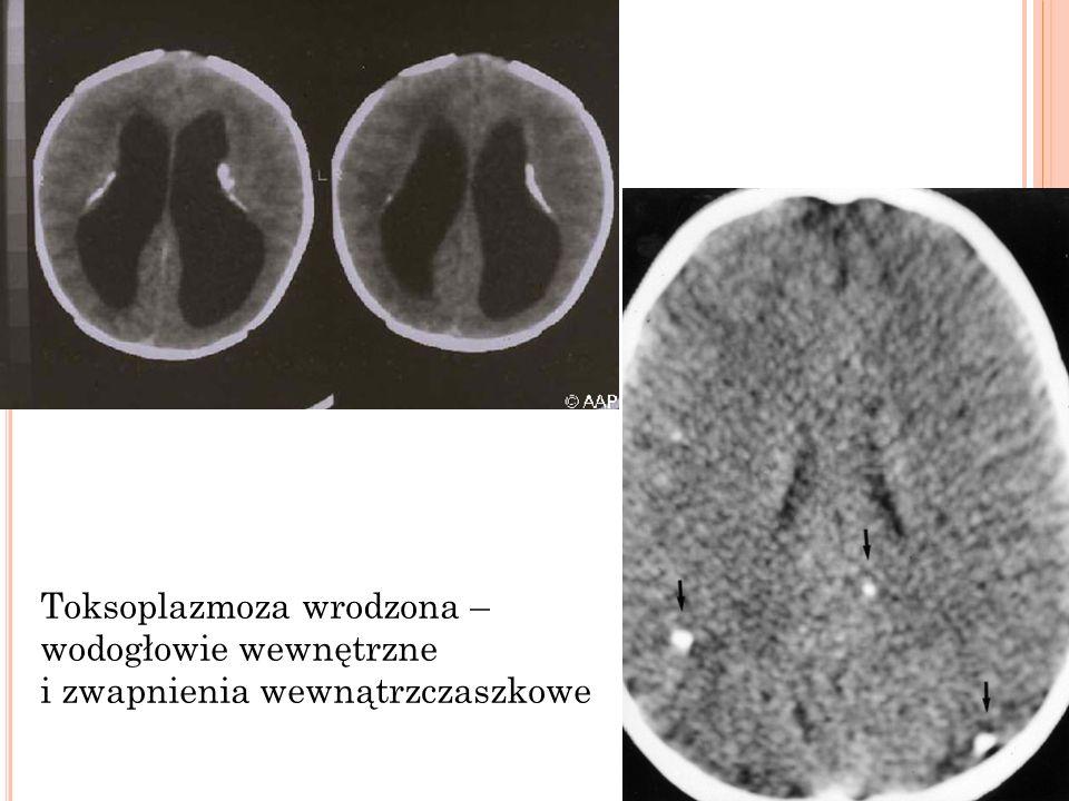 Toksoplazmoza wrodzona – wodogłowie wewnętrzne
