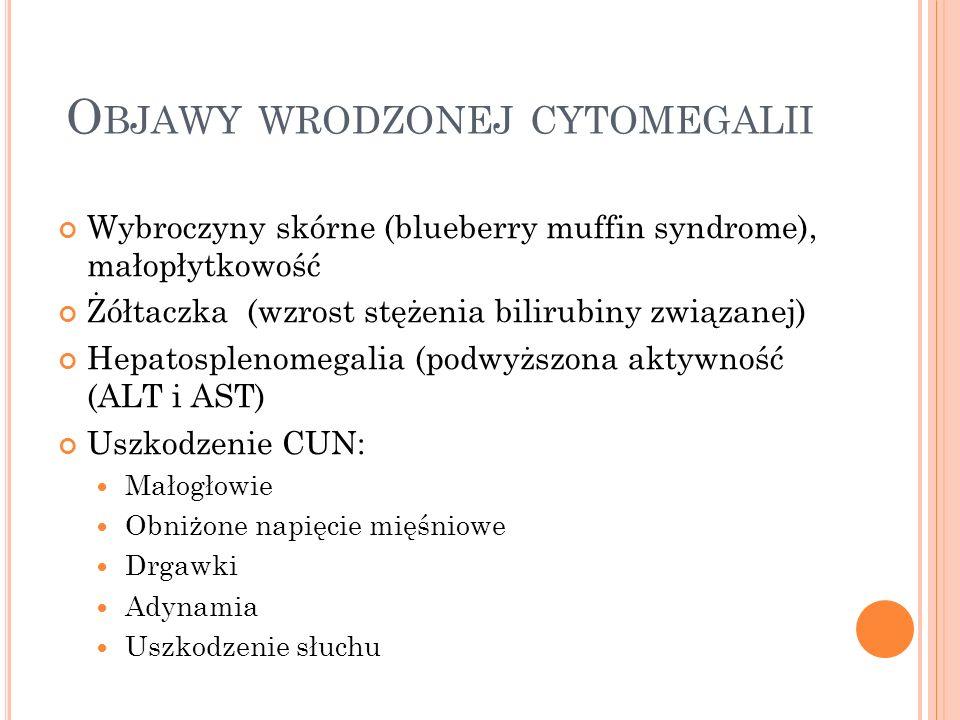 Objawy wrodzonej cytomegalii