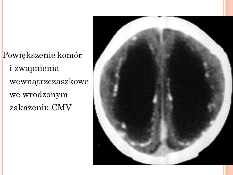 Powiększenie komór i zwapnienia wewnątrzczaszkowe we wrodzonym zakażeniu CMV