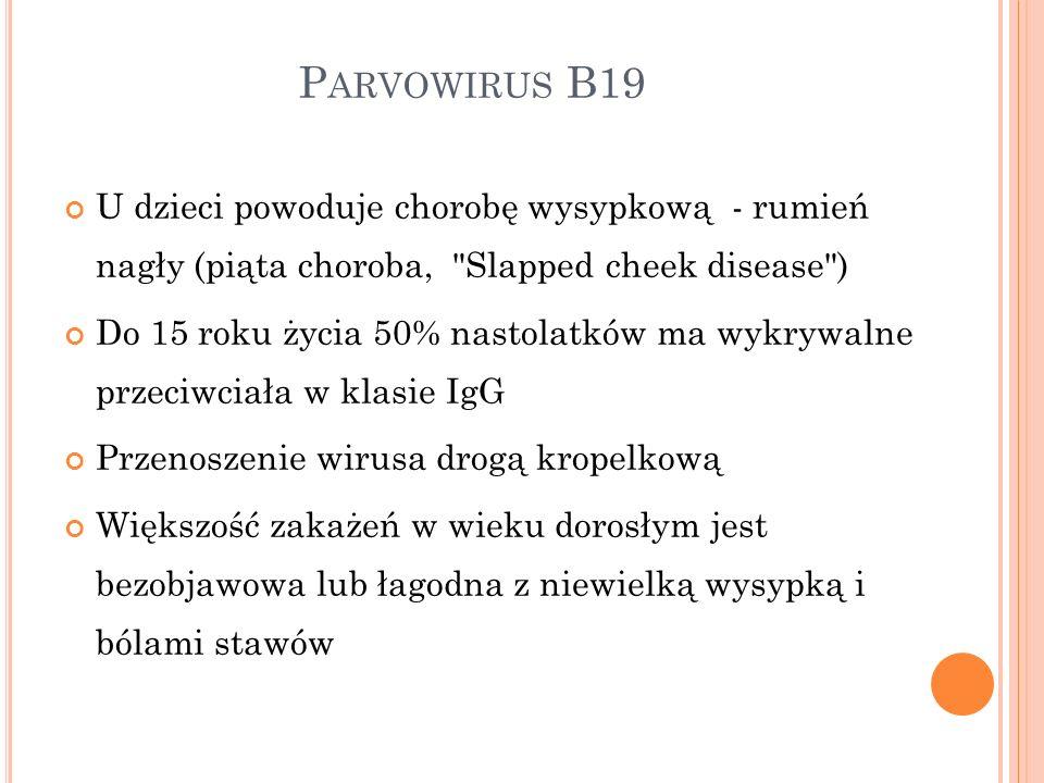 Parvowirus B19 U dzieci powoduje chorobę wysypkową - rumień nagły (piąta choroba, Slapped cheek disease )