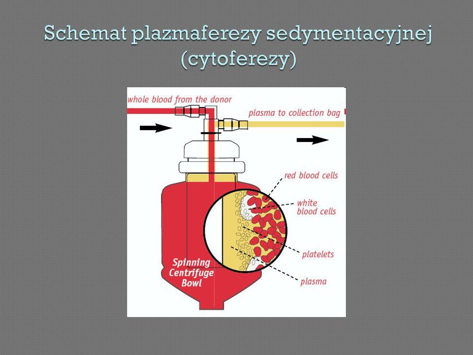 Schemat plazmaferezy sedymentacyjnej (cytoferezy)