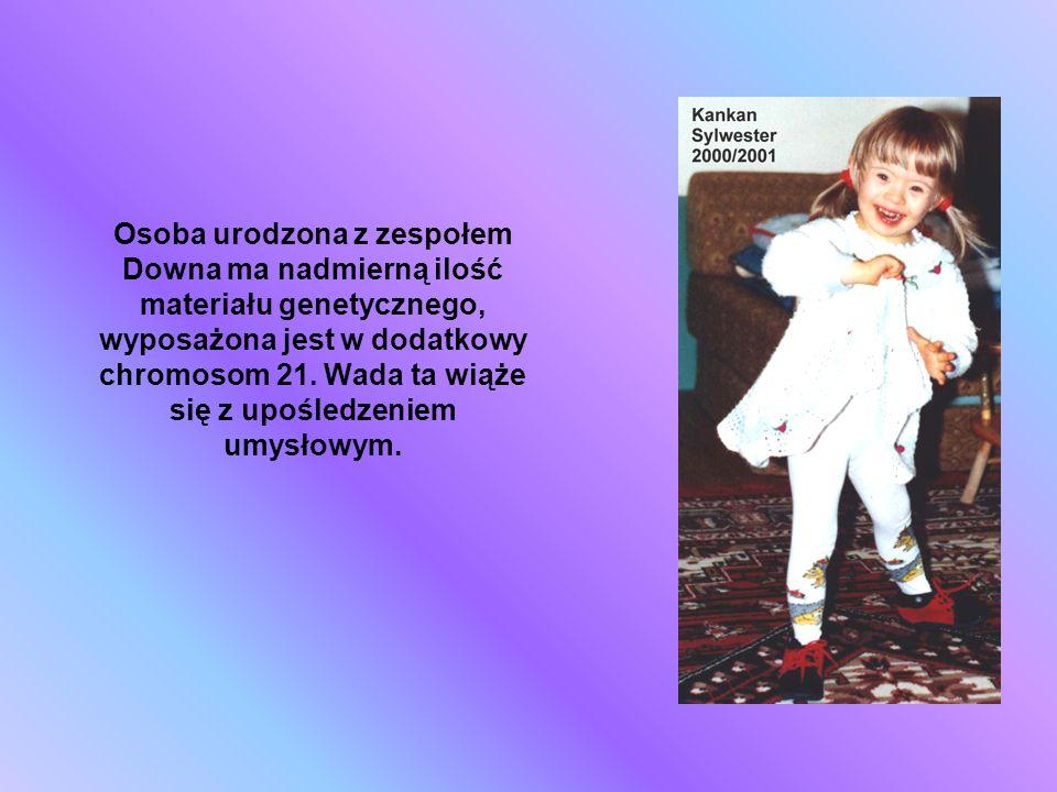 Osoba urodzona z zespołem Downa ma nadmierną ilość materiału genetycznego, wyposażona jest w dodatkowy chromosom 21.