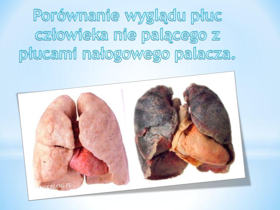 Porównanie wyglądu płuc człowieka nie palącego z płucami nałogowego palacza.