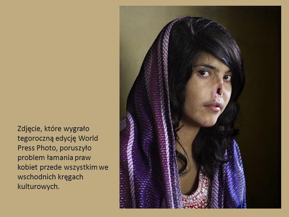 Zdjęcie, które wygrało tegoroczną edycję World Press Photo, poruszyło problem łamania praw kobiet przede wszystkim we wschodnich kręgach kulturowych.