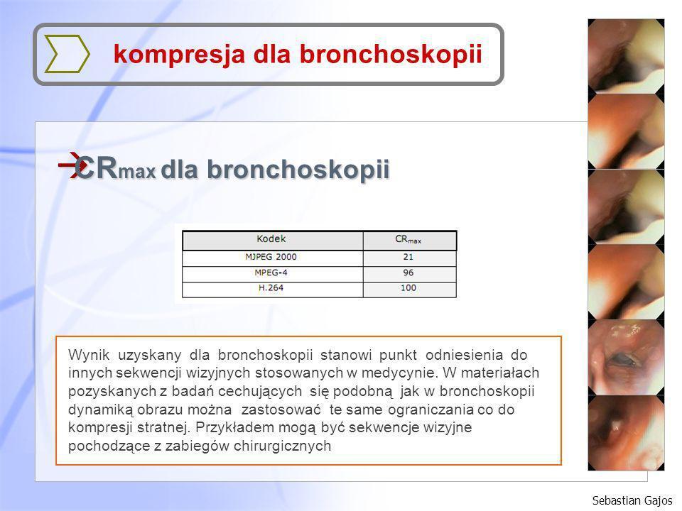 CRmax dla bronchoskopii