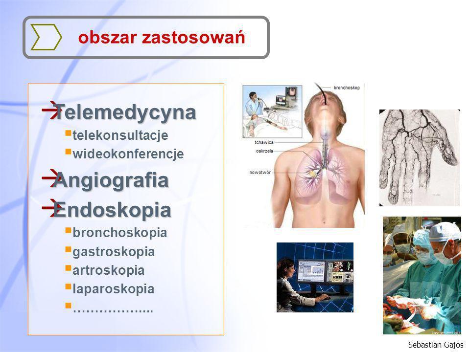 Telemedycyna Angiografia Endoskopia obszar zastosowań telekonsultacje