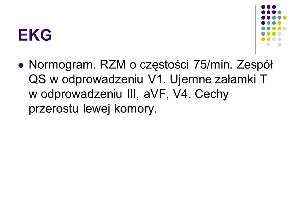 EKG Normogram. RZM o częstości 75/min. Zespół QS w odprowadzeniu V1.