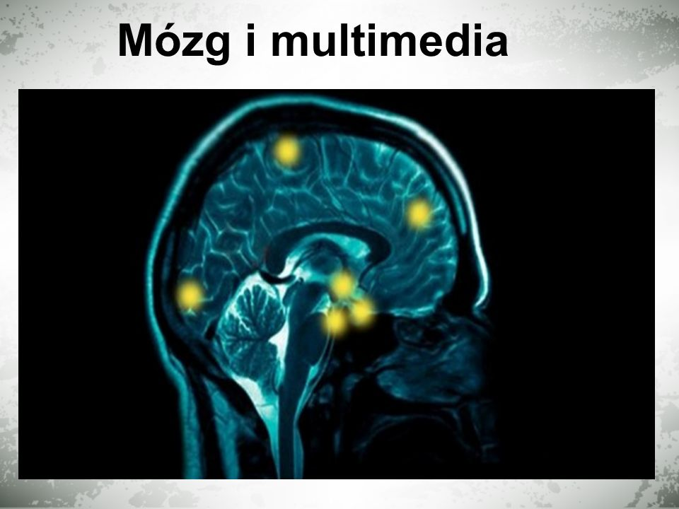 Mózg i multimedia
