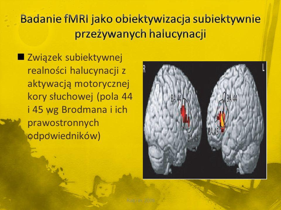 Badanie fMRI jako obiektywizacja subiektywnie przeżywanych halucynacji