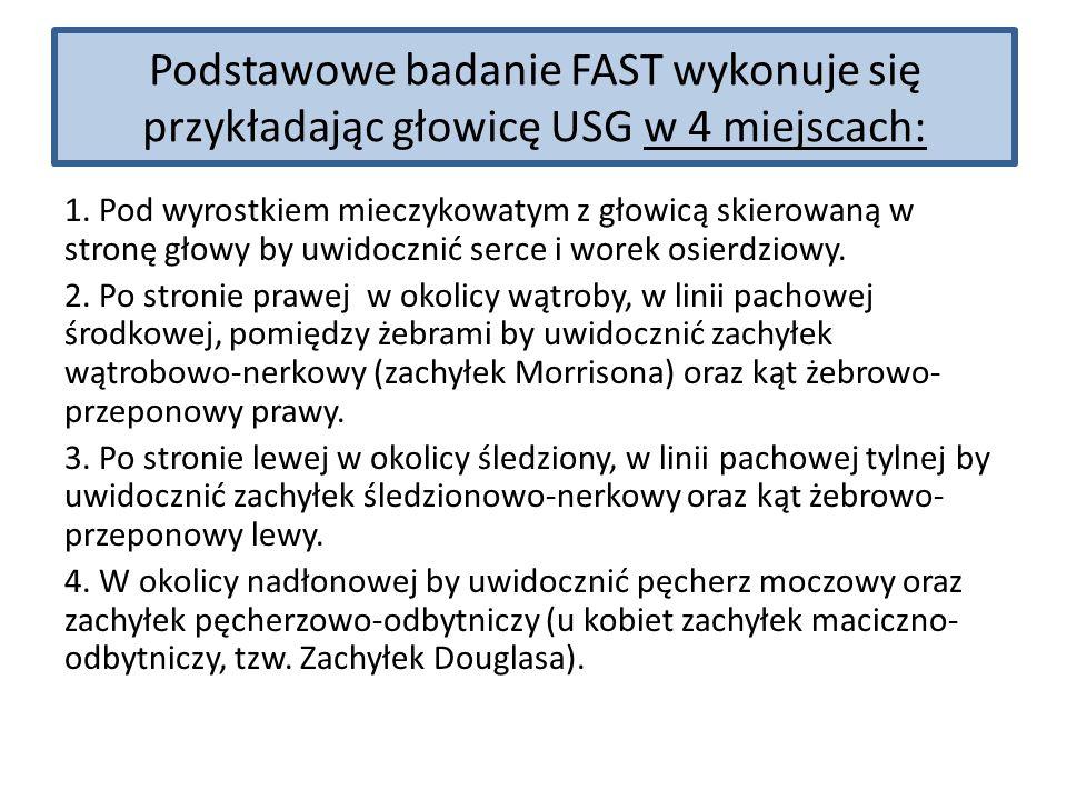 Podstawowe badanie FAST wykonuje się przykładając głowicę USG w 4 miejscach: