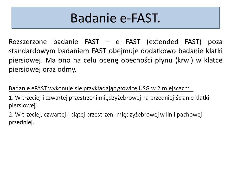 Badanie e-FAST.
