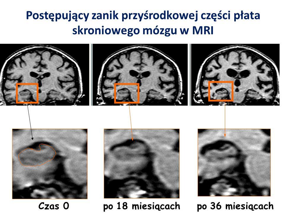 Postępujący zanik przyśrodkowej części płata skroniowego mózgu w MRI