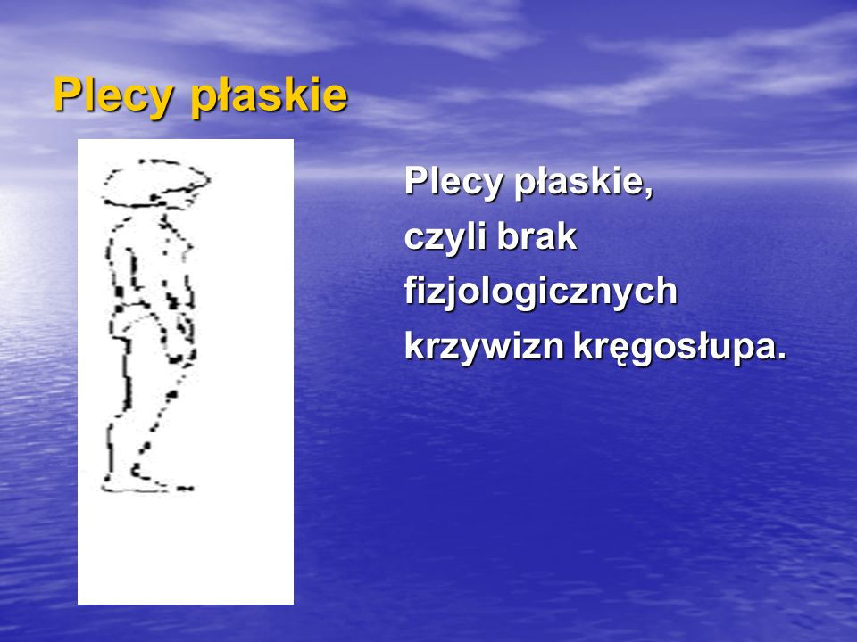 Plecy płaskie Plecy płaskie, czyli brak fizjologicznych