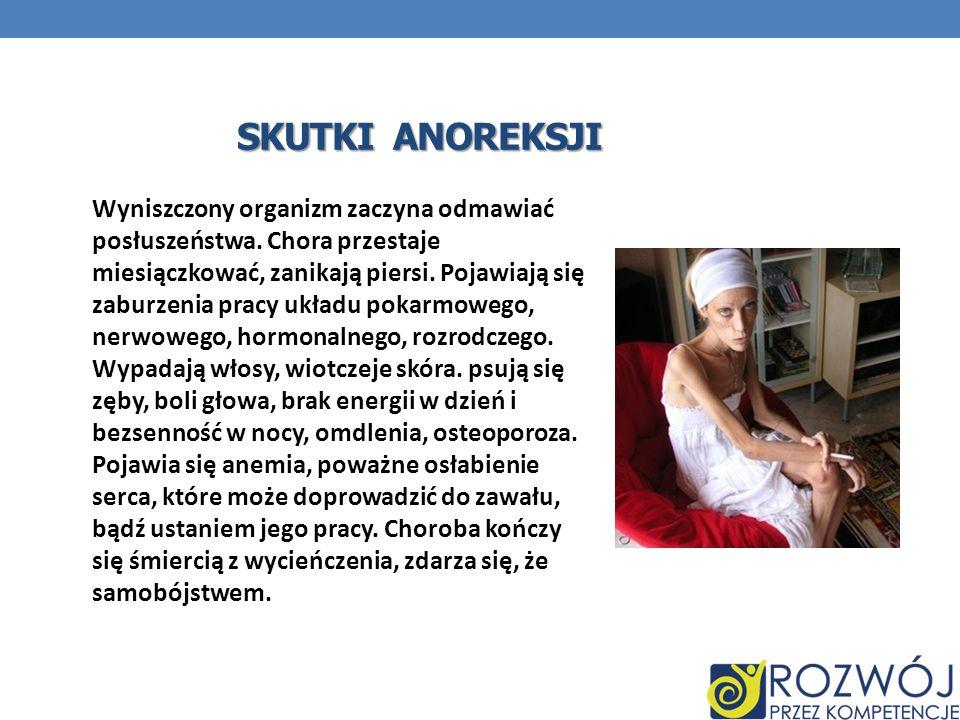 Skutki anoreksji