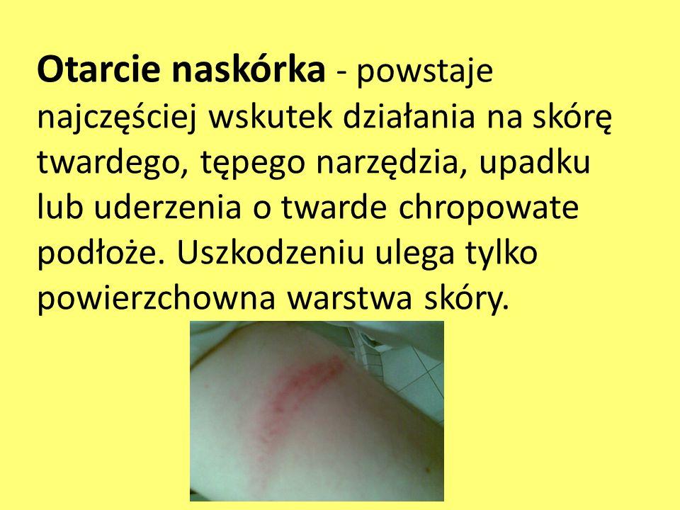 Otarcie naskórka - powstaje najczęściej wskutek działania na skórę twardego, tępego narzędzia, upadku lub uderzenia o twarde chropowate podłoże.
