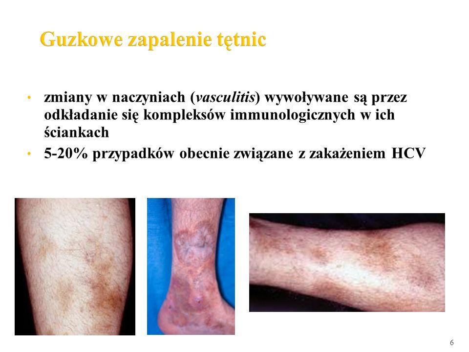 5-20% przypadków obecnie związane z zakażeniem HCV