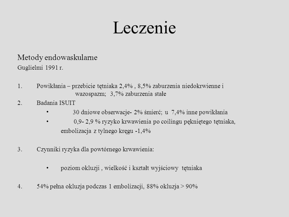 Leczenie Metody endowaskularne Guglielmi 1991 r.
