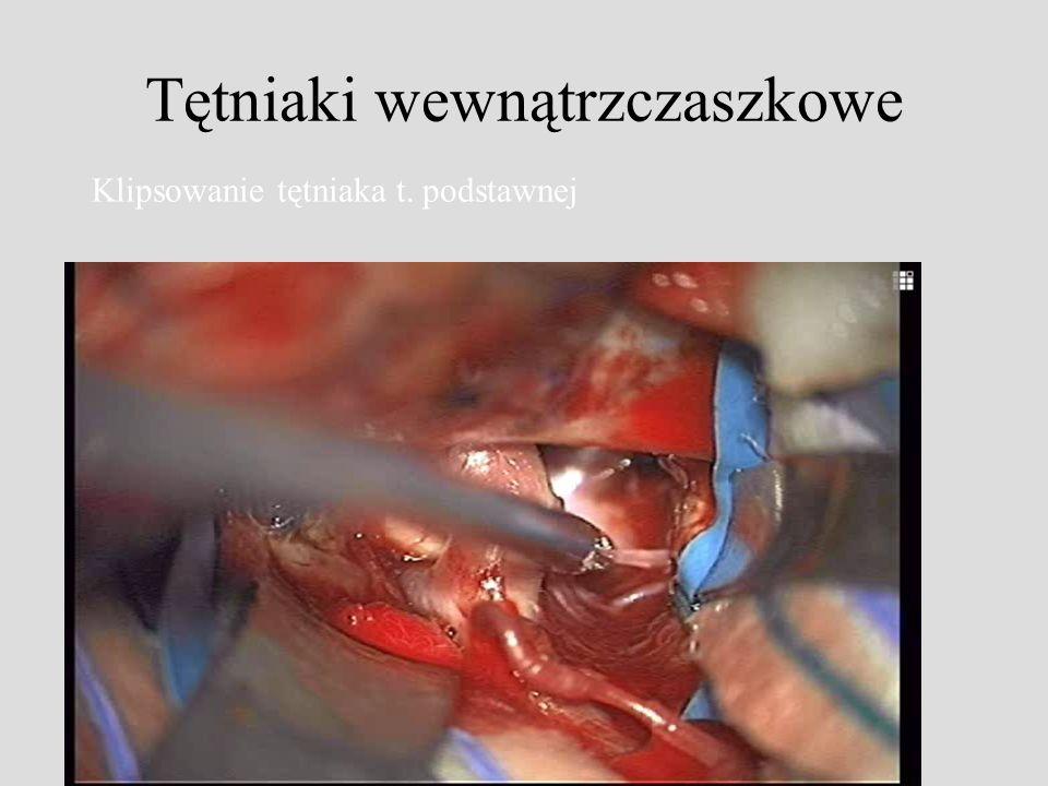 Tętniaki wewnątrzczaszkowe