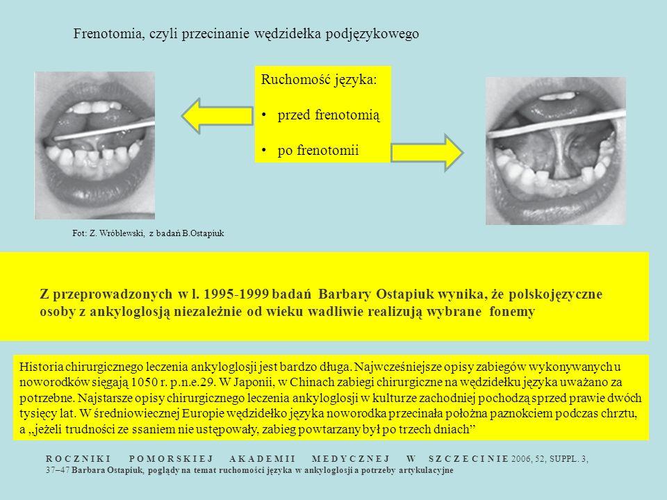 Frenotomia, czyli przecinanie wędzidełka podjęzykowego
