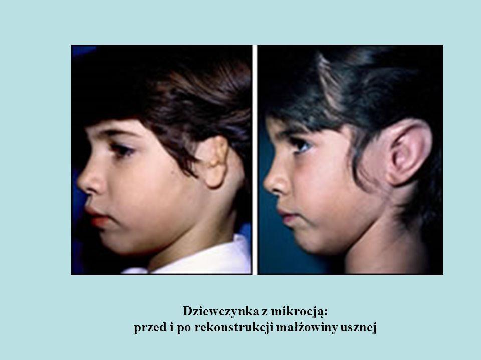 Dziewczynka z mikrocją: przed i po rekonstrukcji małżowiny usznej
