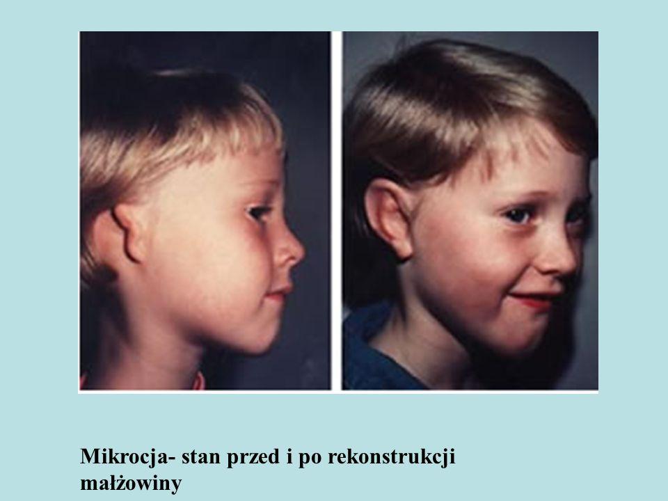 Mikrocja- stan przed i po rekonstrukcji małżowiny