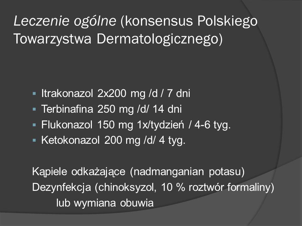 Leczenie ogólne (konsensus Polskiego Towarzystwa Dermatologicznego)