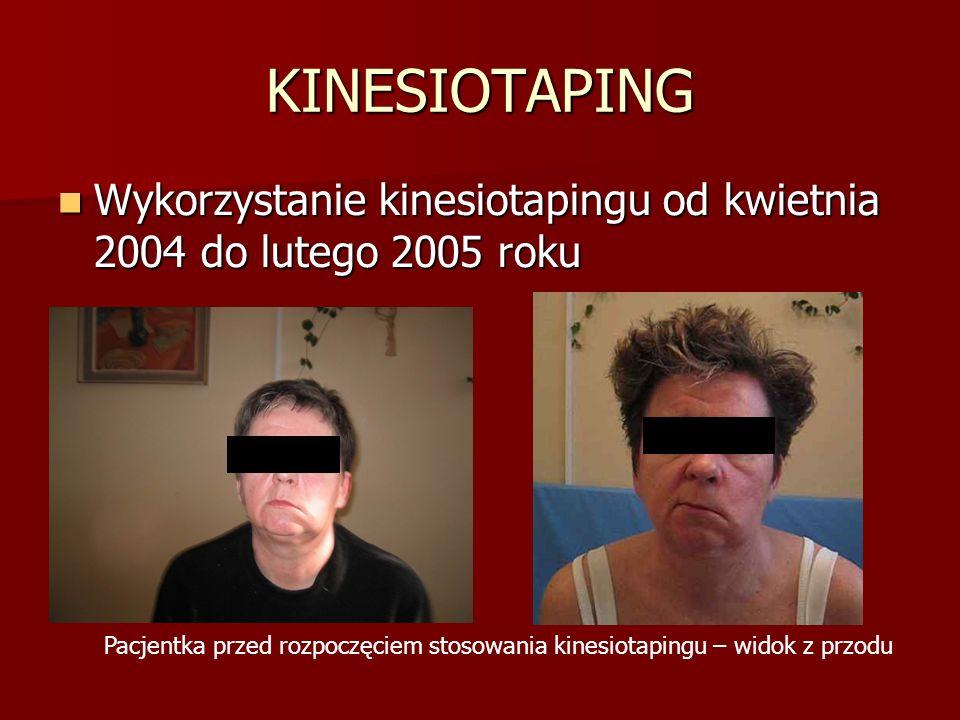 KINESIOTAPING Wykorzystanie kinesiotapingu od kwietnia 2004 do lutego 2005 roku.