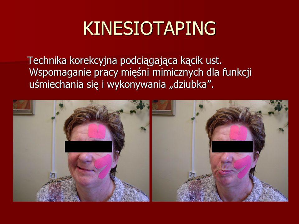 KINESIOTAPING Technika korekcyjna podciągająca kącik ust.