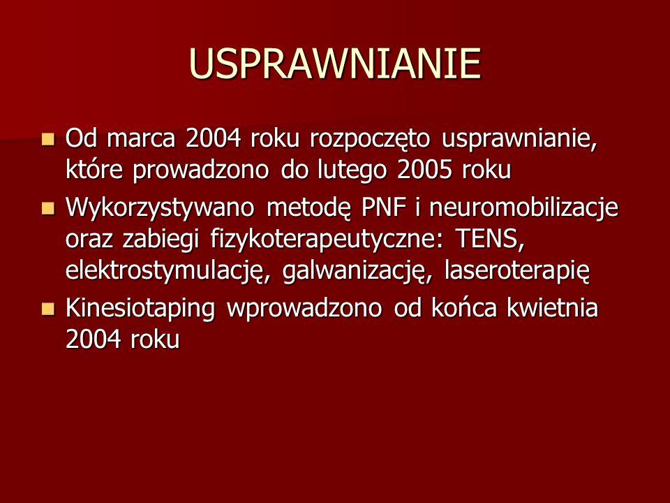 USPRAWNIANIE Od marca 2004 roku rozpoczęto usprawnianie, które prowadzono do lutego 2005 roku.