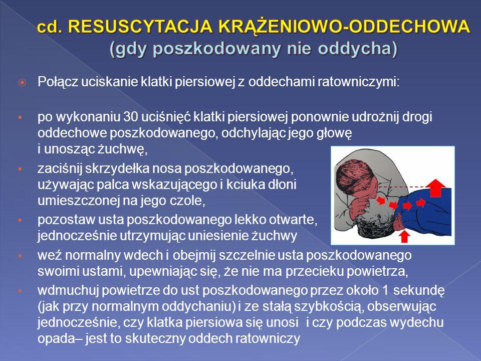 cd. RESUSCYTACJA KRĄŻENIOWO-ODDECHOWA (gdy poszkodowany nie oddycha)