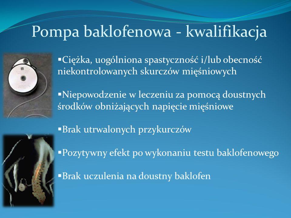 Pompa baklofenowa - kwalifikacja