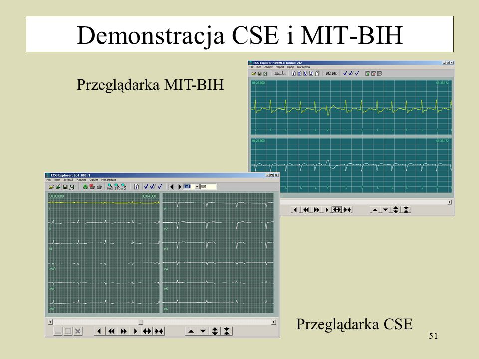 Demonstracja CSE i MIT-BIH