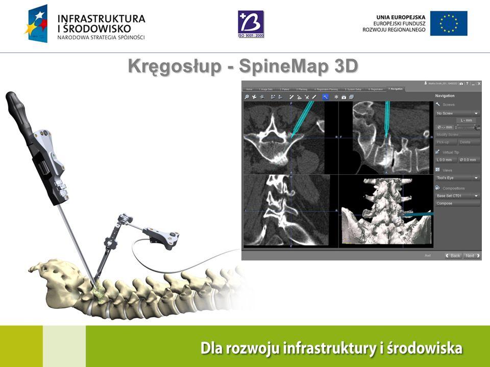 Kręgosłup - SpineMap 3D