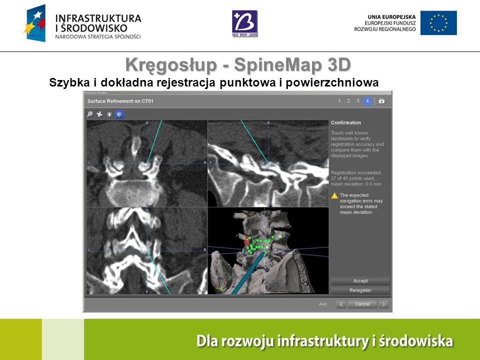 Kręgosłup - SpineMap 3D Szybka i dokładna rejestracja punktowa i powierzchniowa