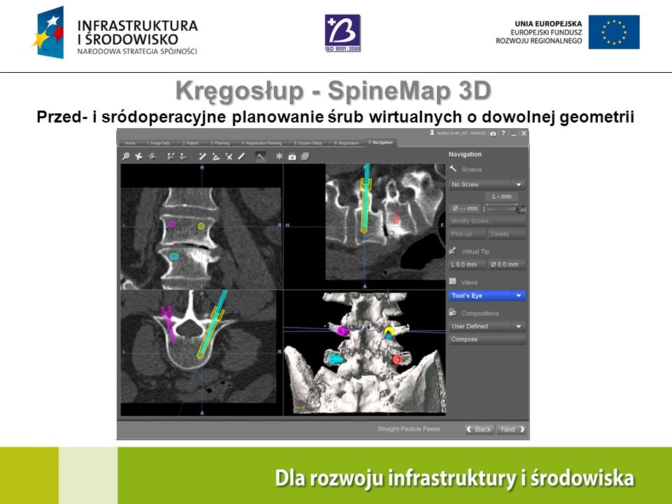 Kręgosłup - SpineMap 3D Przed- i sródoperacyjne planowanie śrub wirtualnych o dowolnej geometrii