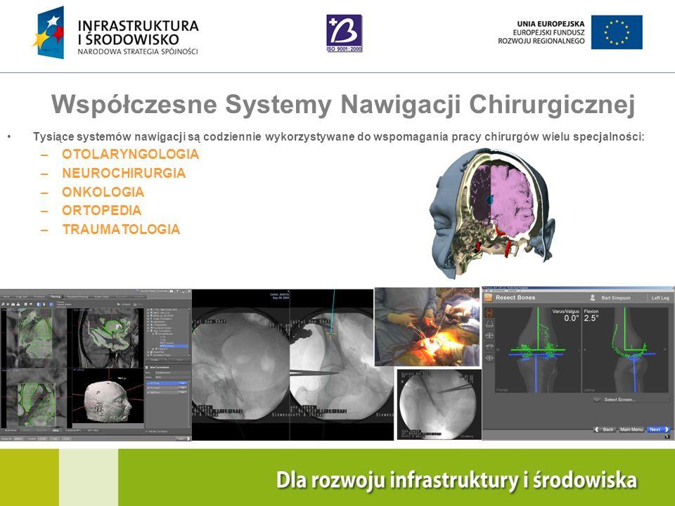 Współczesne Systemy Nawigacji Chirurgicznej