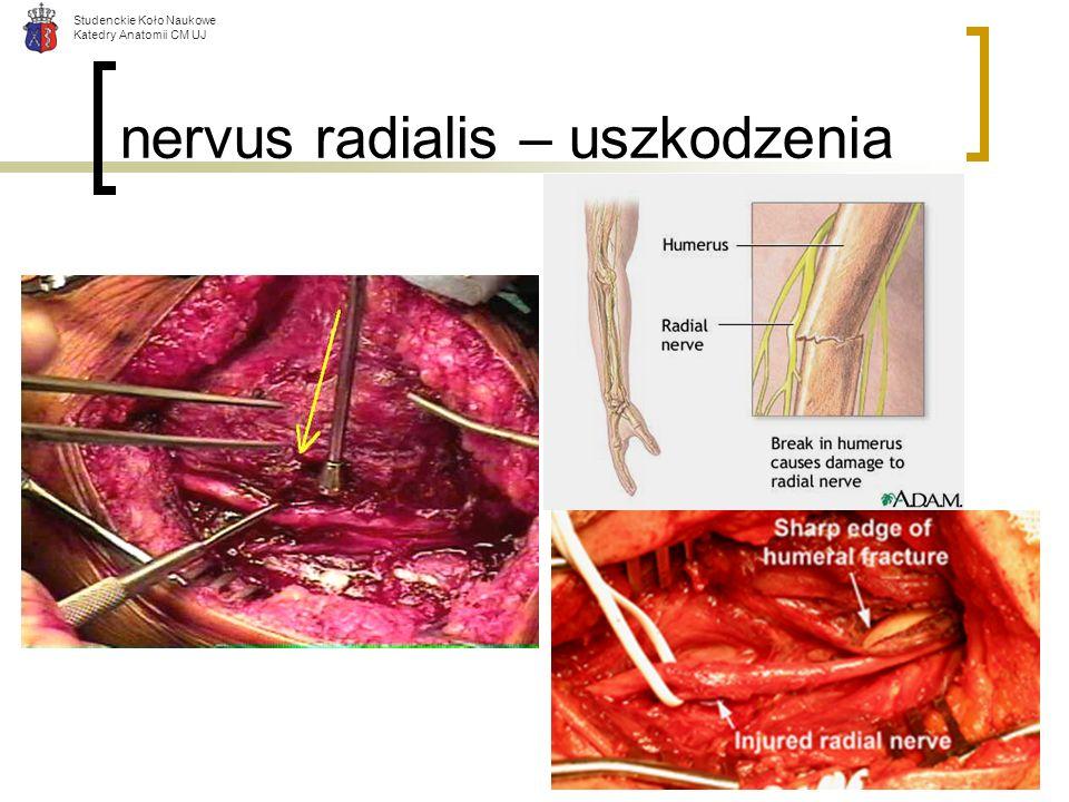 nervus radialis – uszkodzenia
