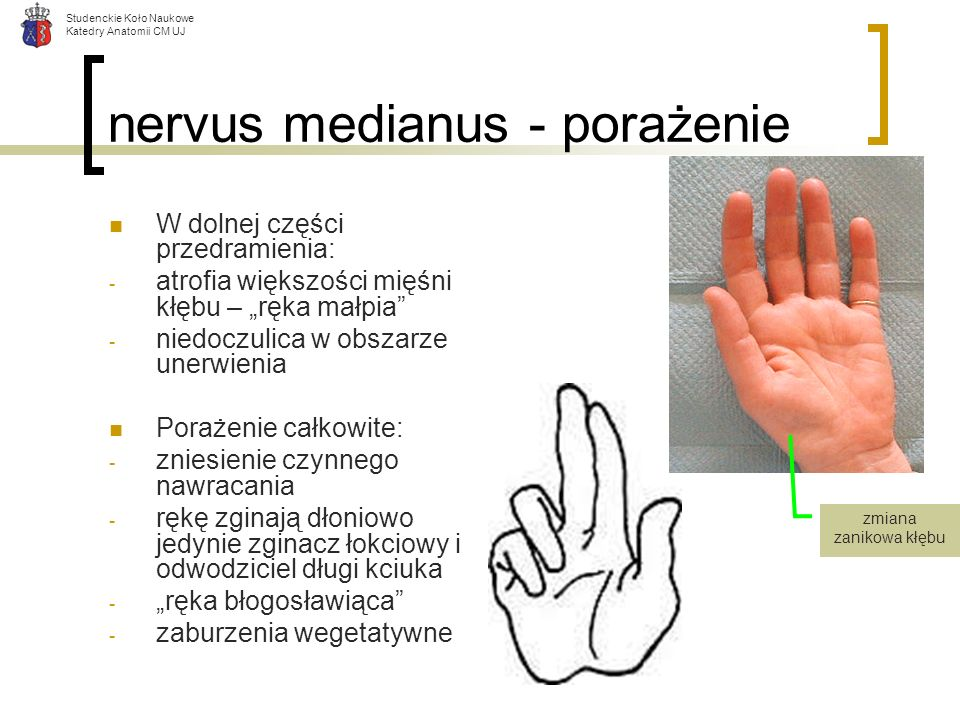 nervus medianus - porażenie
