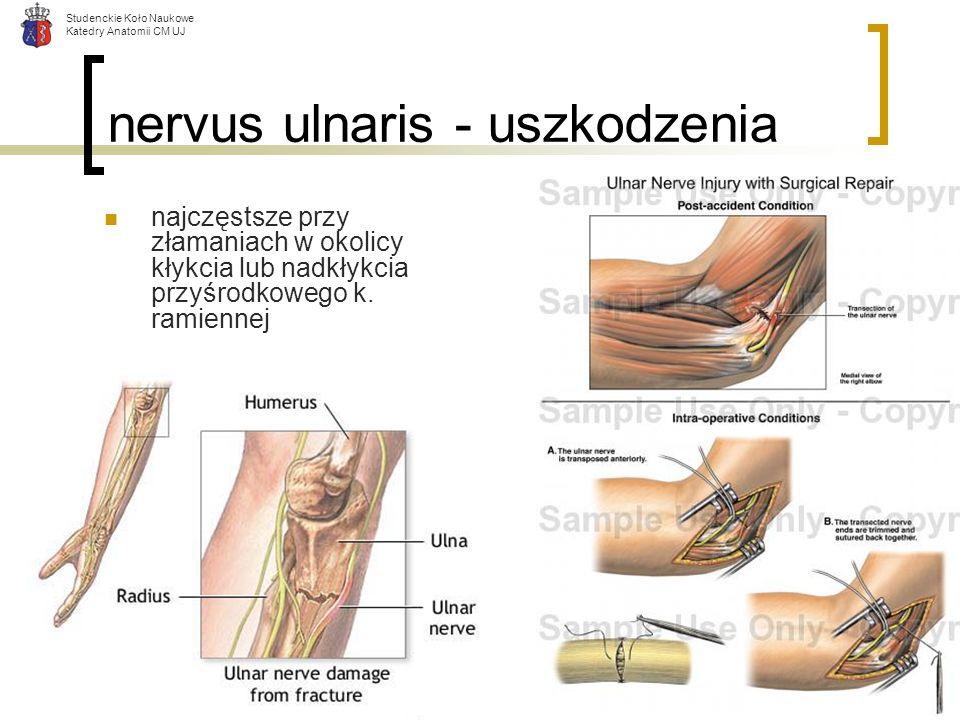 nervus ulnaris - uszkodzenia