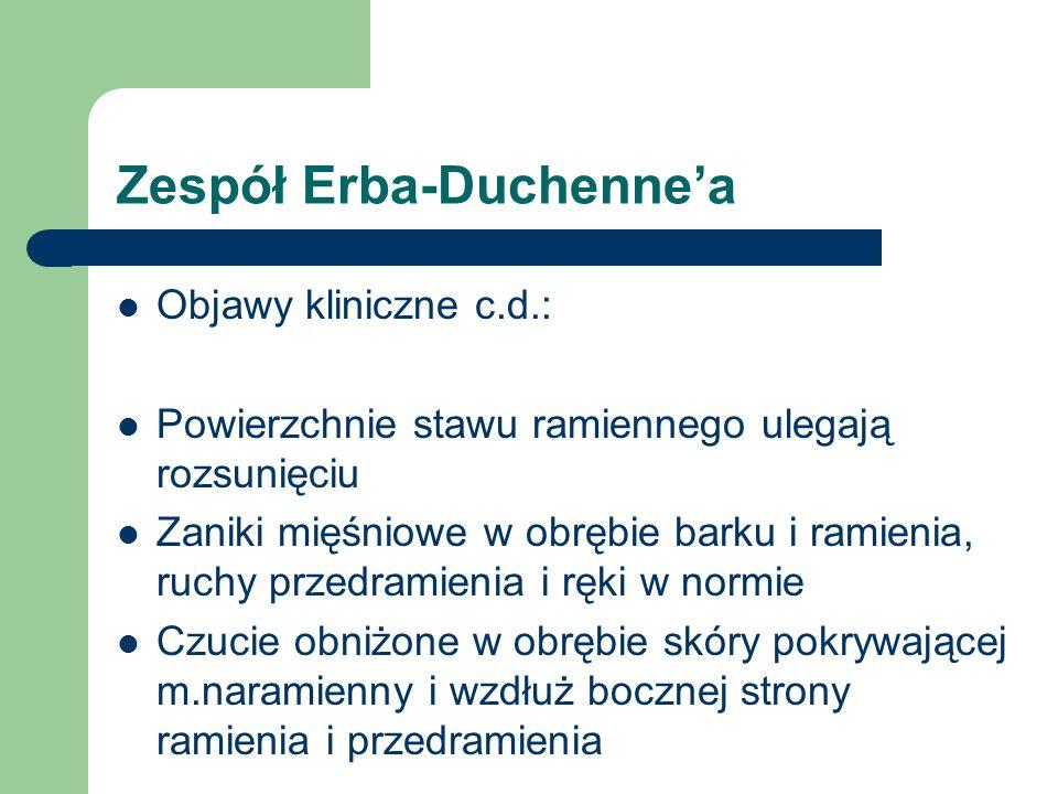 Zespół Erba-Duchenne'a