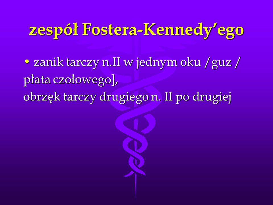 zespół Fostera-Kennedy'ego