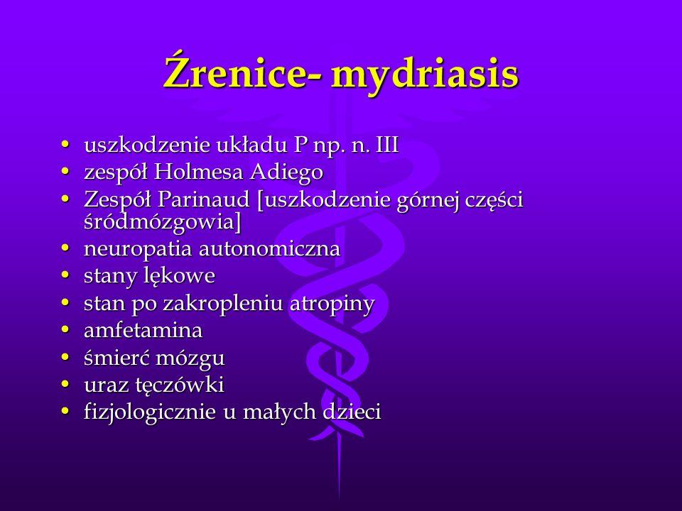 Źrenice- mydriasis uszkodzenie układu P np. n. III