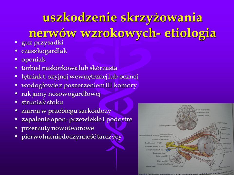 uszkodzenie skrzyżowania nerwów wzrokowych- etiologia