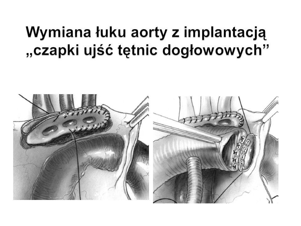 """Wymiana łuku aorty z implantacją """"czapki ujść tętnic dogłowowych"""