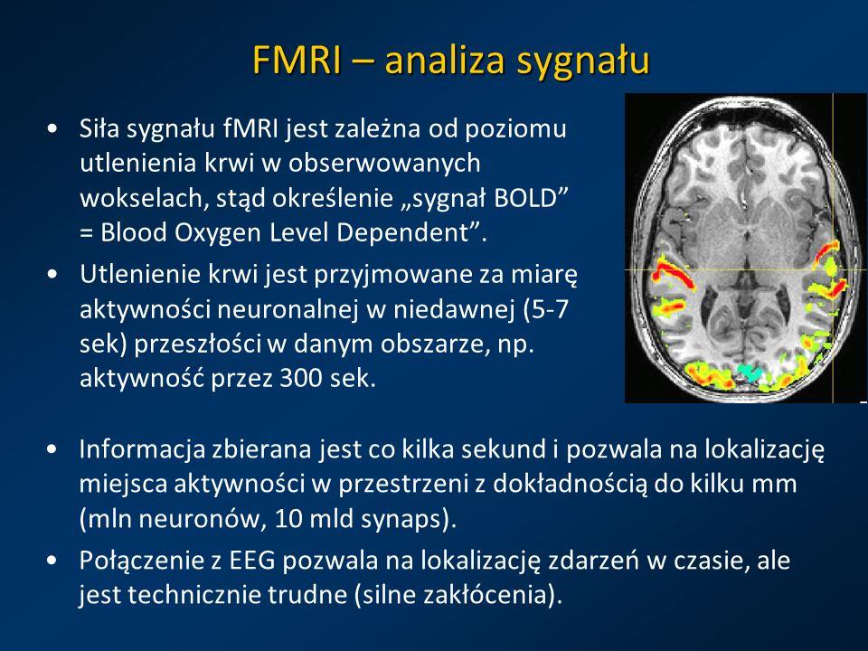 FMRI – analiza sygnału